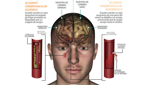 Info_accidente cerebrovascular