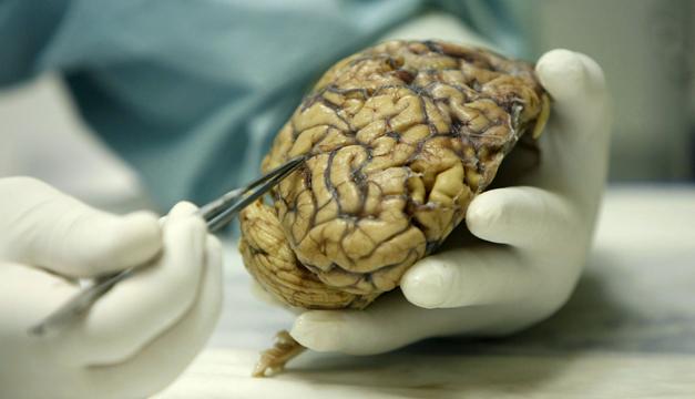 Cerebro-EFE