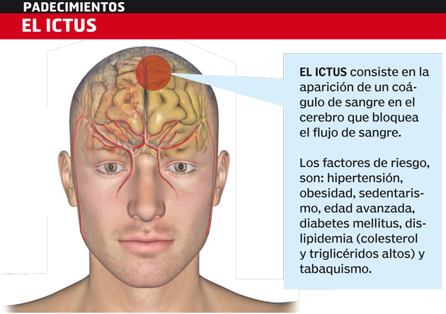 ICTUS-Padecimientos-neurologicos