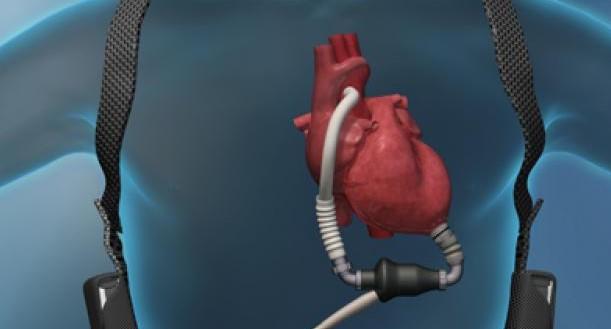 corazonartificial